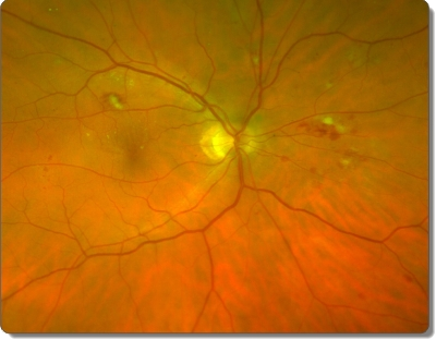 Optos photo of eye retina of diabetic patient or patient with early development of diabetes